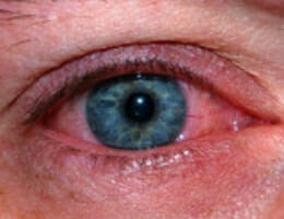Learn more about red eye, common causes, tips for eye examinations and more in this podcast.