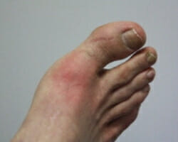 Learn about gout and pseudogout in this podcast for junior doctors.