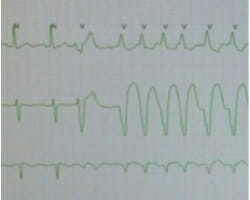 Learn more about arrhythmias in the post-operative patient in this podcast for junior doctors.