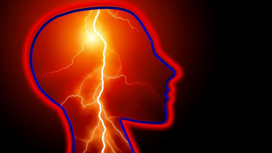 Medical podcast on stroke, symptoms and management of patients.
